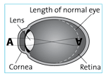 Eye shape with nearsightedness